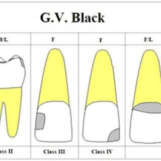 Этапы лечения кариеса по блэку