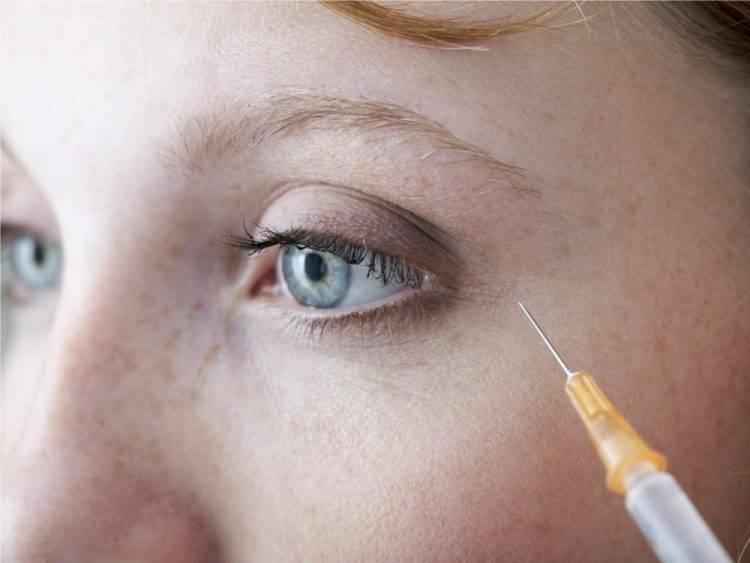 Как убрать морщины и гусиные лапки вокруг глаз