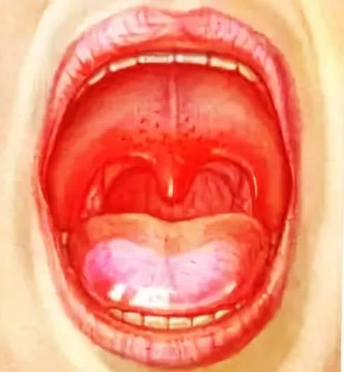 Стоматит и боль в горле