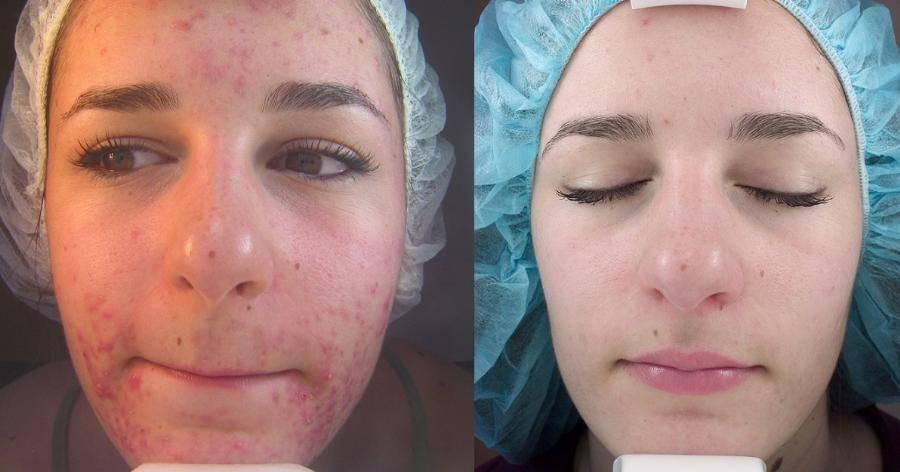 Рекомендации после чистки лица – можно ли сразу после делать пилинг, что нельзя, уход в салоне, можно ли краситься и умываться