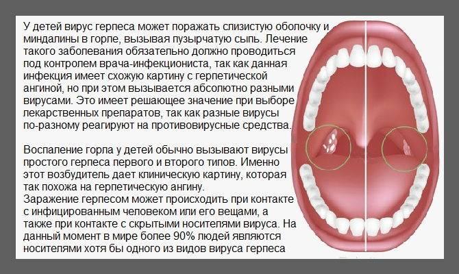 Стоматит у ребенка на миндалинах лечение