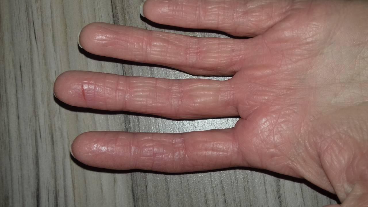 Почему шелушится кожа на руках, ногах и других частях тела
