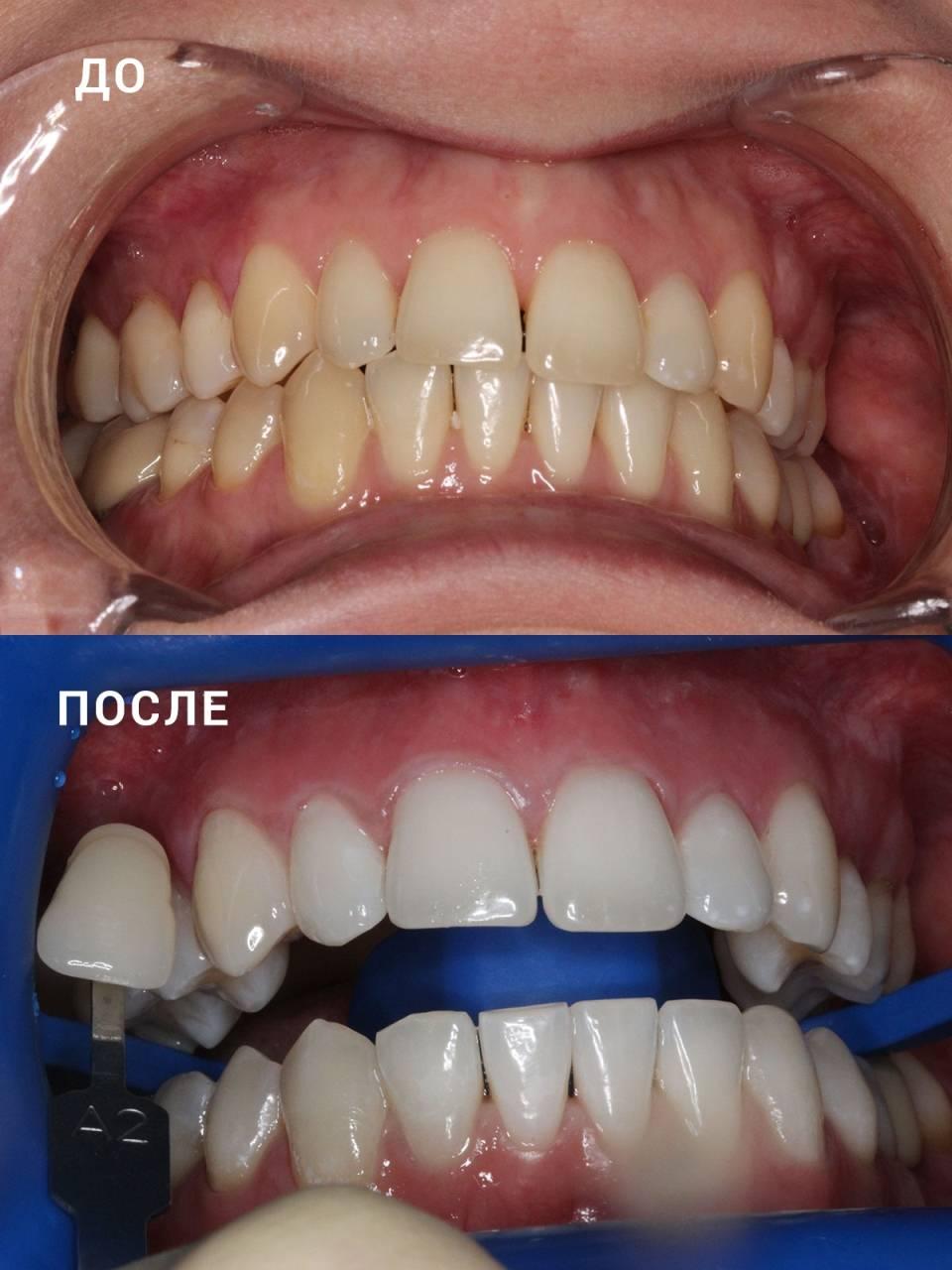 Что такое отбеливание zoom 3, сколько держится результат: реальные фото зубов до и после процедуры