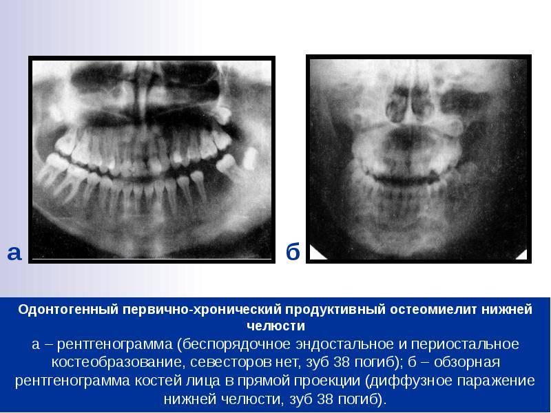 Остеонекроз челюсти как основной признак остеомиелита
