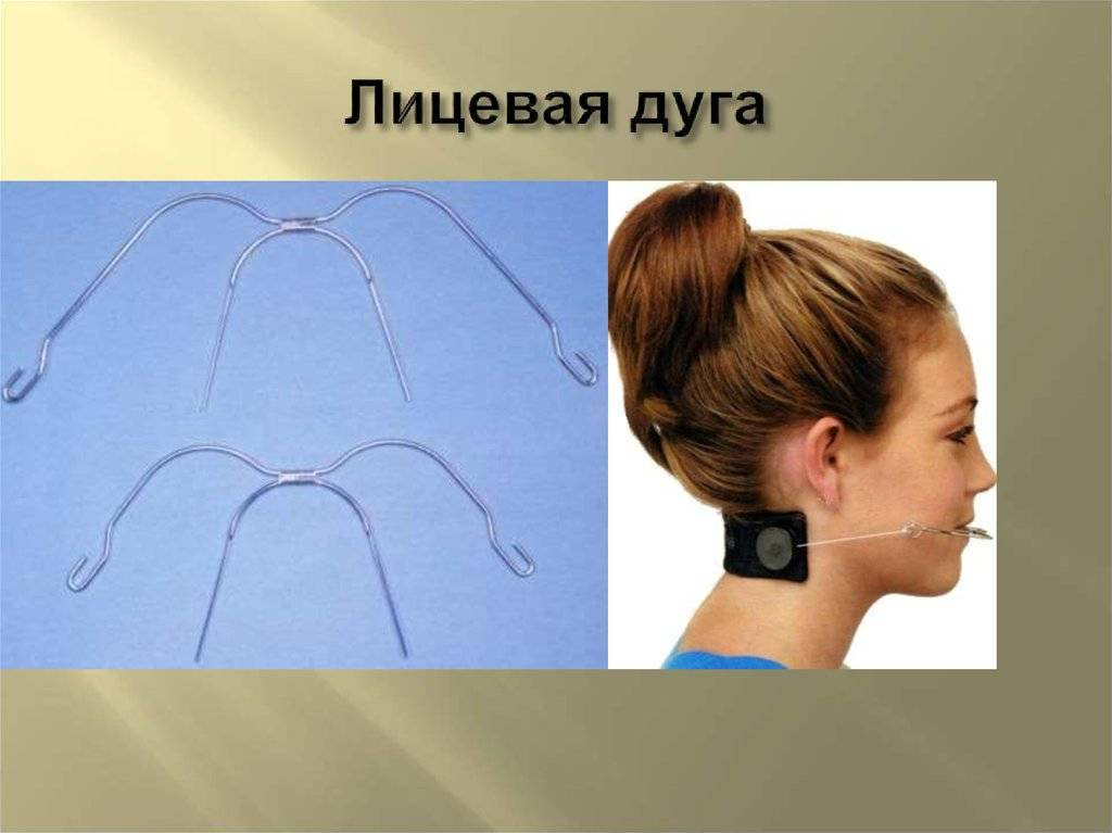 Лицевая дуга. лицевая дуга в стоматологии: описание, особенности применения, виды и отзывы
