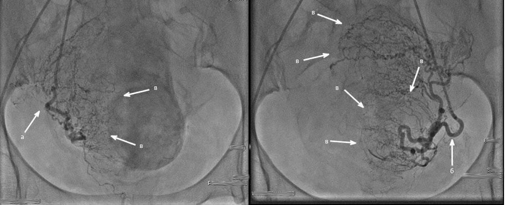 Эмболизация маточных артерий (эма): суть, показания, как проводят, результат и реабилитация