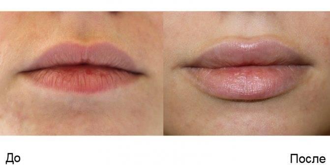Способы увеличения губ гелем и их особенности