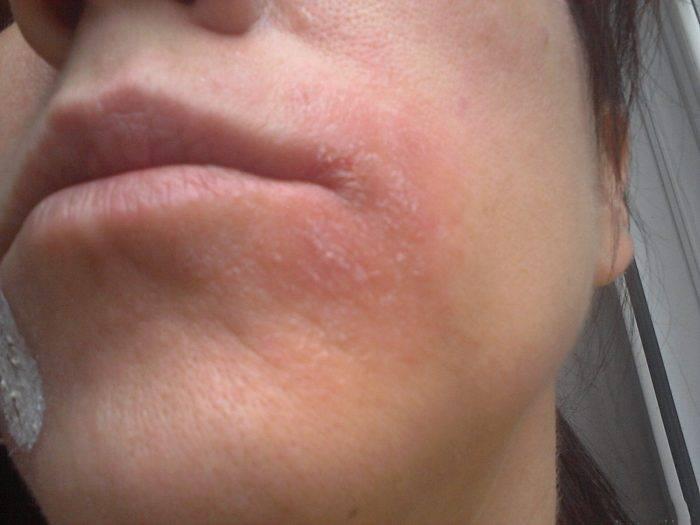 Покраснение и шелушение кожи на лице: причины и лечение