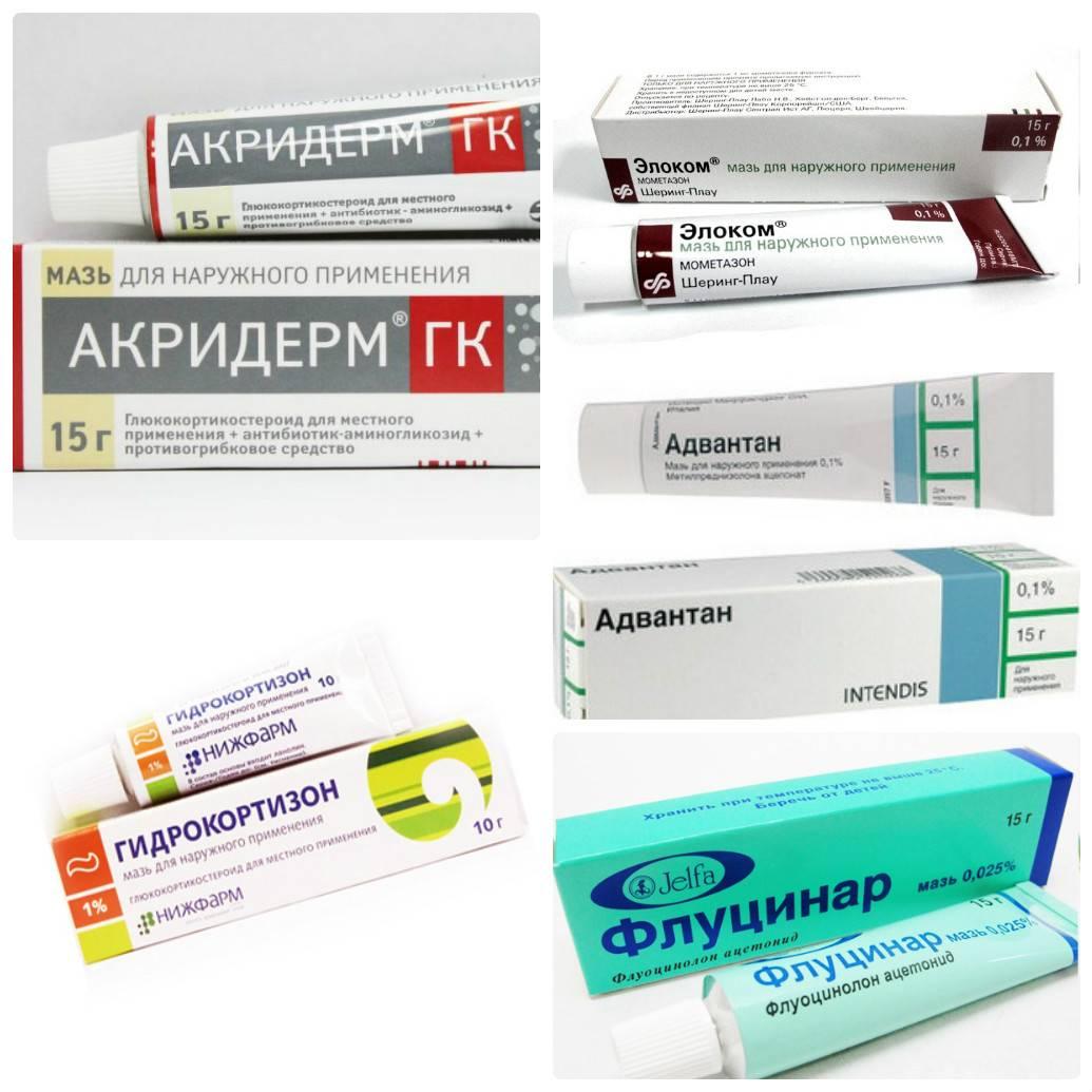 Разнообразие кремов при лечении аллергии у взрослых и детей