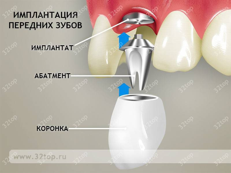 Установка имплантов зубных в верхней челюсти