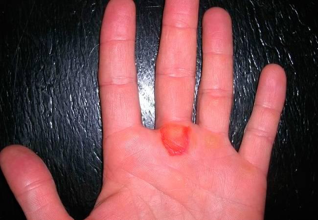 Как избавиться от мозоли на пальце руки? причины появления и способы лечения