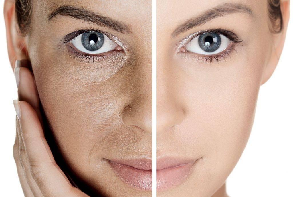 Как очистить кожу лица от забитых пор