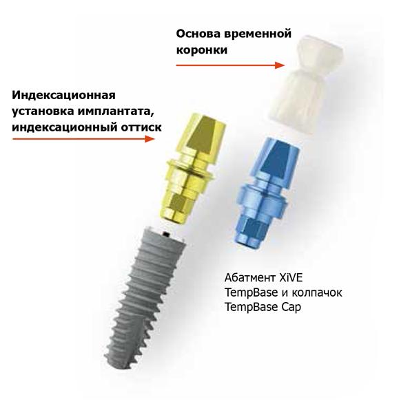 Какими технологическими характеристиками отличаются импланты xive?