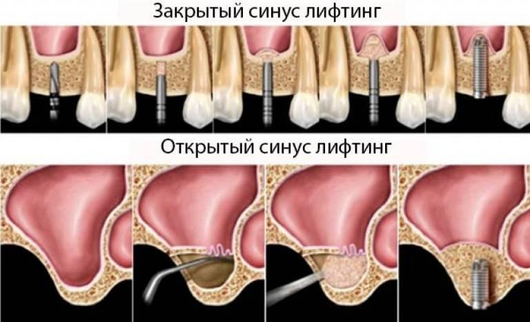 Особенности открытого и закрытого синус-лифтинга в стоматологии: рекомендации после проведения операции, осложнения