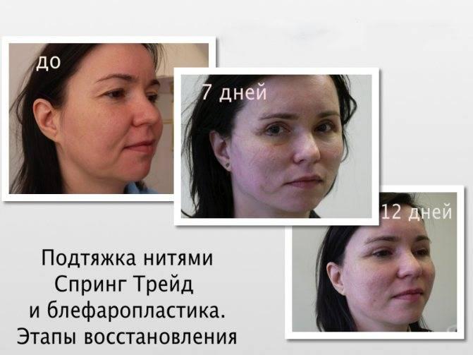 Реабилитация после круговой подтяжки лица – восстановление и отзывы о процедуре
