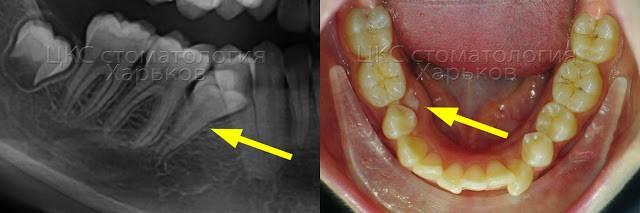Какие осложнения могут возникнуть после удаления зуба мудрости на верхней и нижней челюсти?