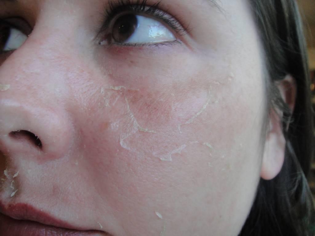 Что делать, если кожа сухая после увлажнения: 3 решения