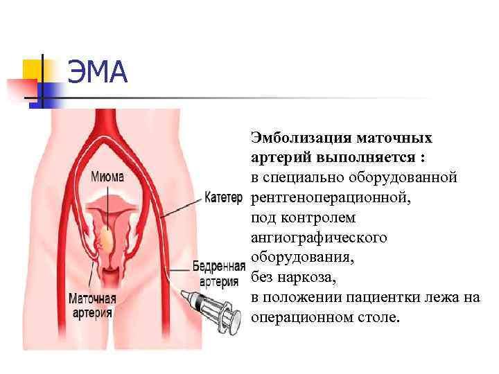 Эмболизация маточных артерий —  метод лечения миомы матки