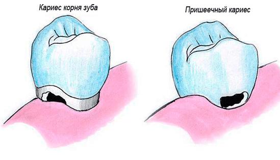 Лечение кариеса: современные методы и препараты