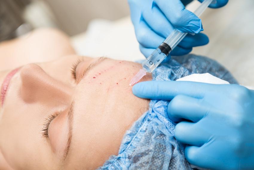 Основные различия между биоревитализацией и мезотерапией, что лучше для вашей кожи