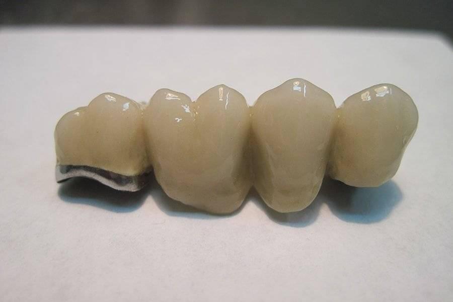 Все о зубных коронках