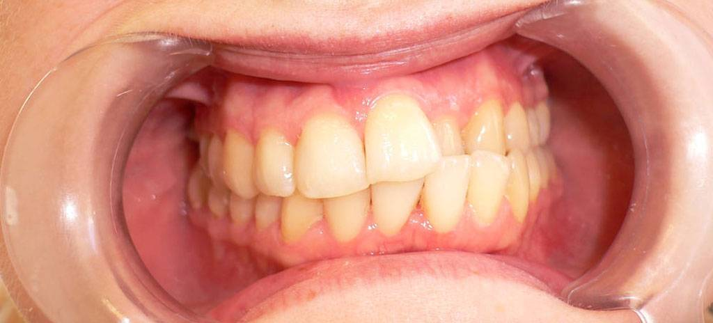 Большие и малые зубы (макродентия и микродентия): причины, симптомы, лечение