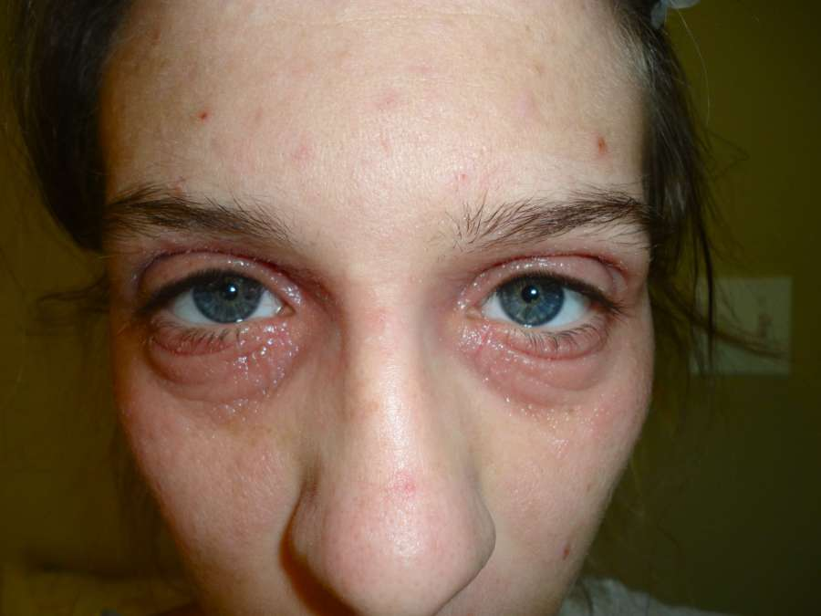 Почему шелушится кожа вокруг глаз?