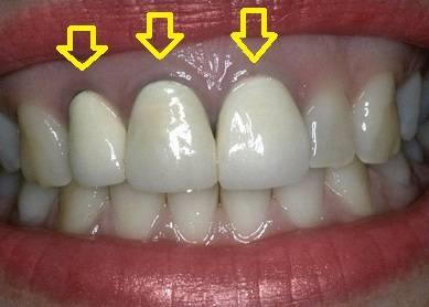 Неприятный запах и вкус крови из-под зубной коронки: что делать, как менять протез, поможет ли вотергласс?