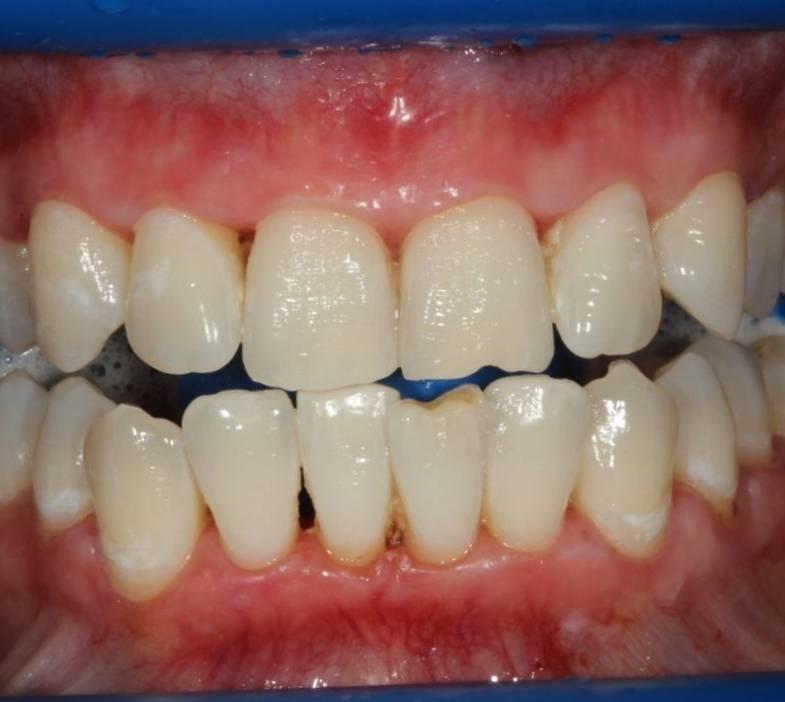 Сколько живут мертвые зубы без нерва, и почему они чернеют после удаления пульпы?