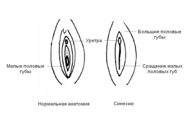 Руски Девственица