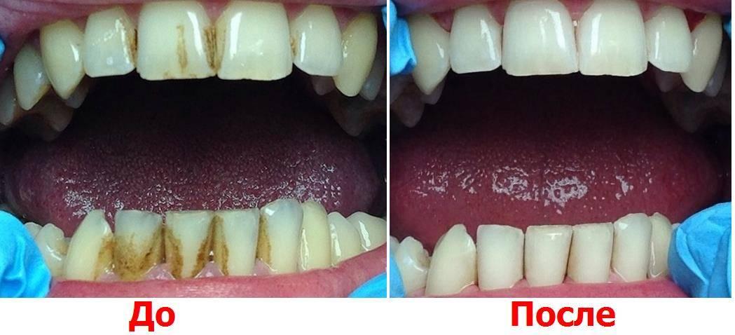 Профессиональная чистка зубов – методики, цена 2020, отзывы, фото