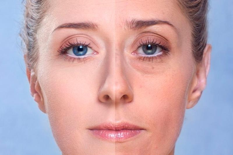 Убираем мешки под глазами. 5 эффективных методов
