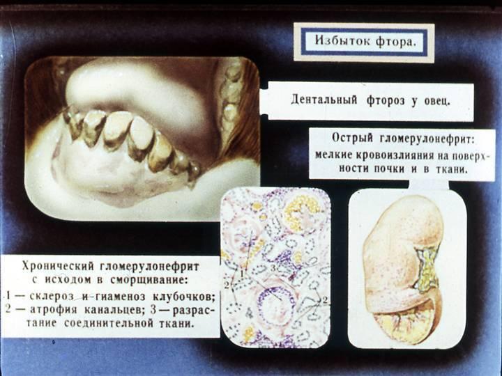 Влияние фтора на зубы и его польза и вред для улыбки