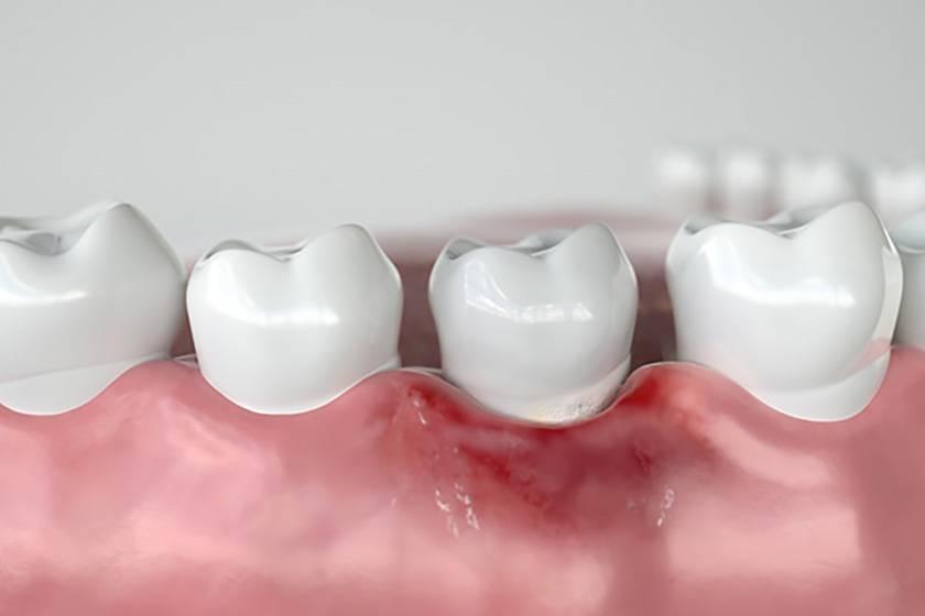 Признаки кисты зуба