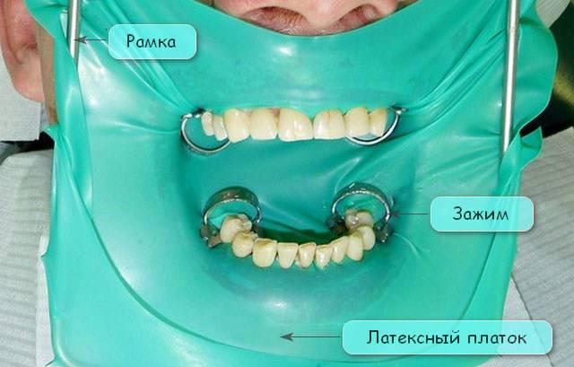 Система коффердам в стоматологии