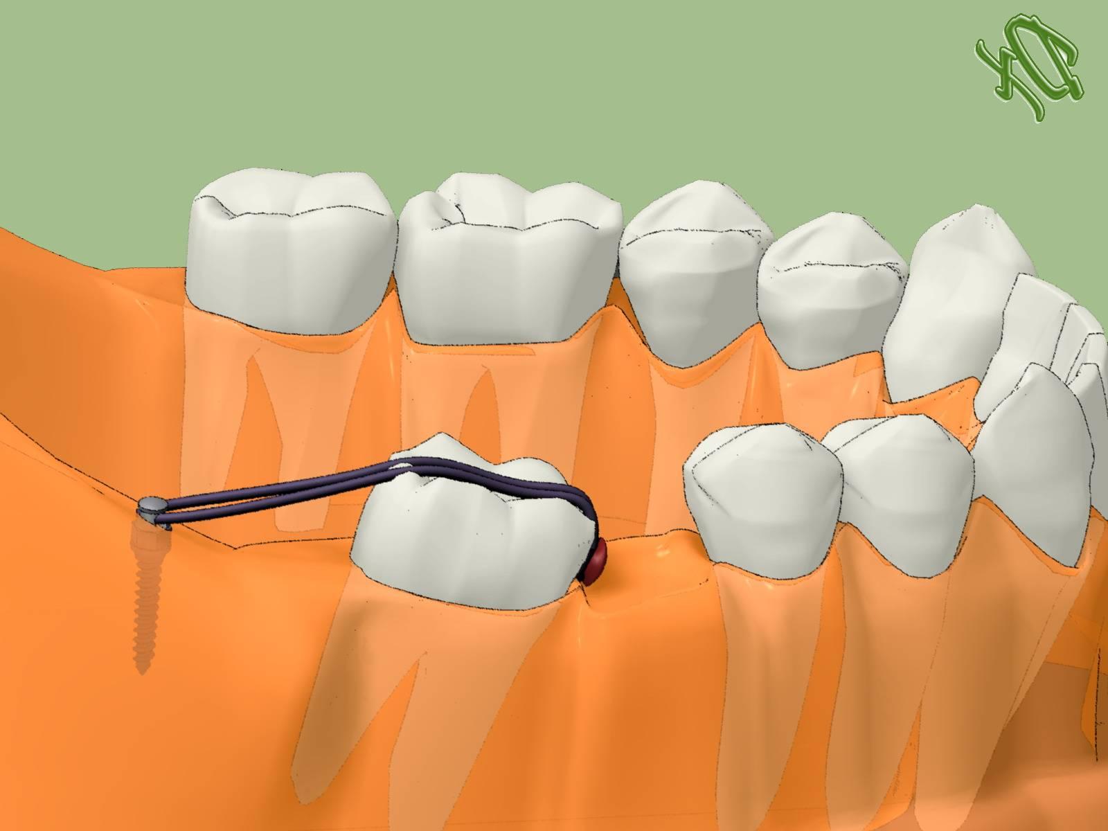 Новости и статьи в рубрике «ортодонтия»