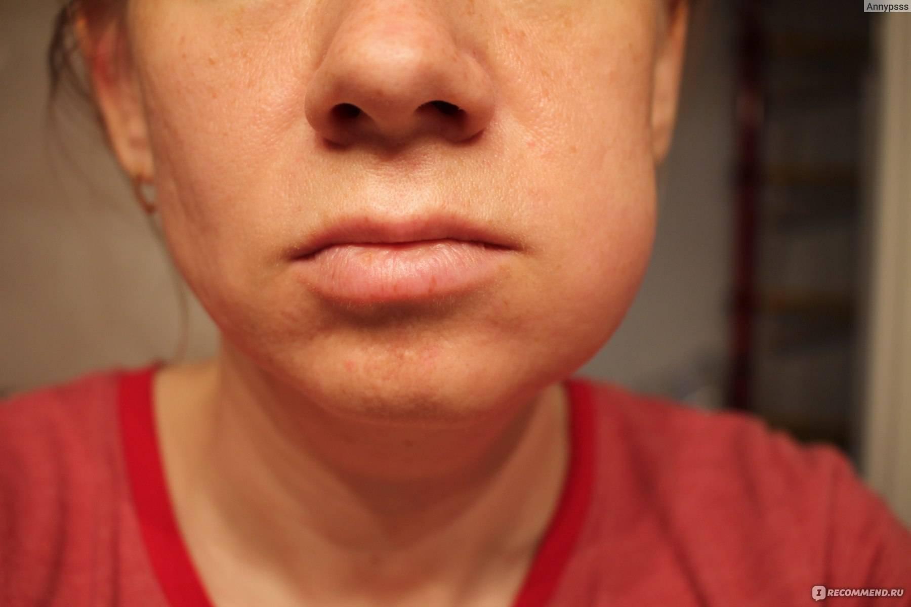 Как справиться? ноющие и изматывающие боли после имплантации зубов