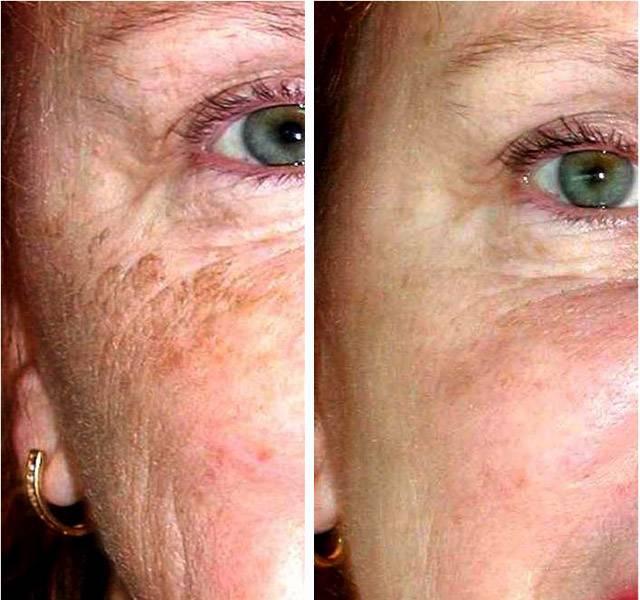 Безупречное лицо: как избавиться от пигментных пятен