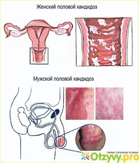 Кровяные выделения после секса: возможные причины