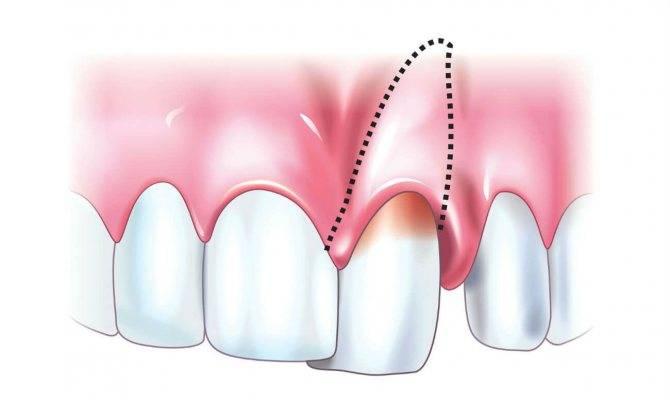 Почему керамические коронки шатаются на зубах?