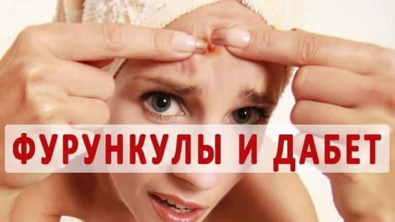 Как быстро и безопасно избавиться от фурункула на лице: местная терапия или операция