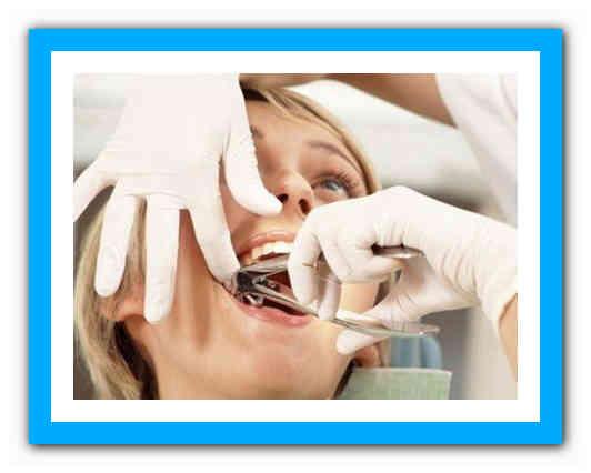 Осложнения после удаления зуба | последствия удаления зуба