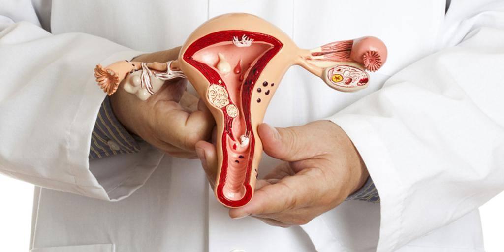 Последствия удаления матки для организма — отзывы женщин