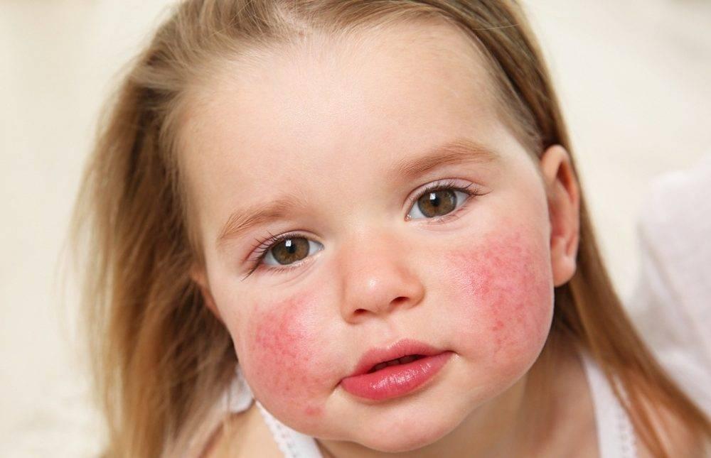 Аллергия на языке: симптомы, причины, лечение