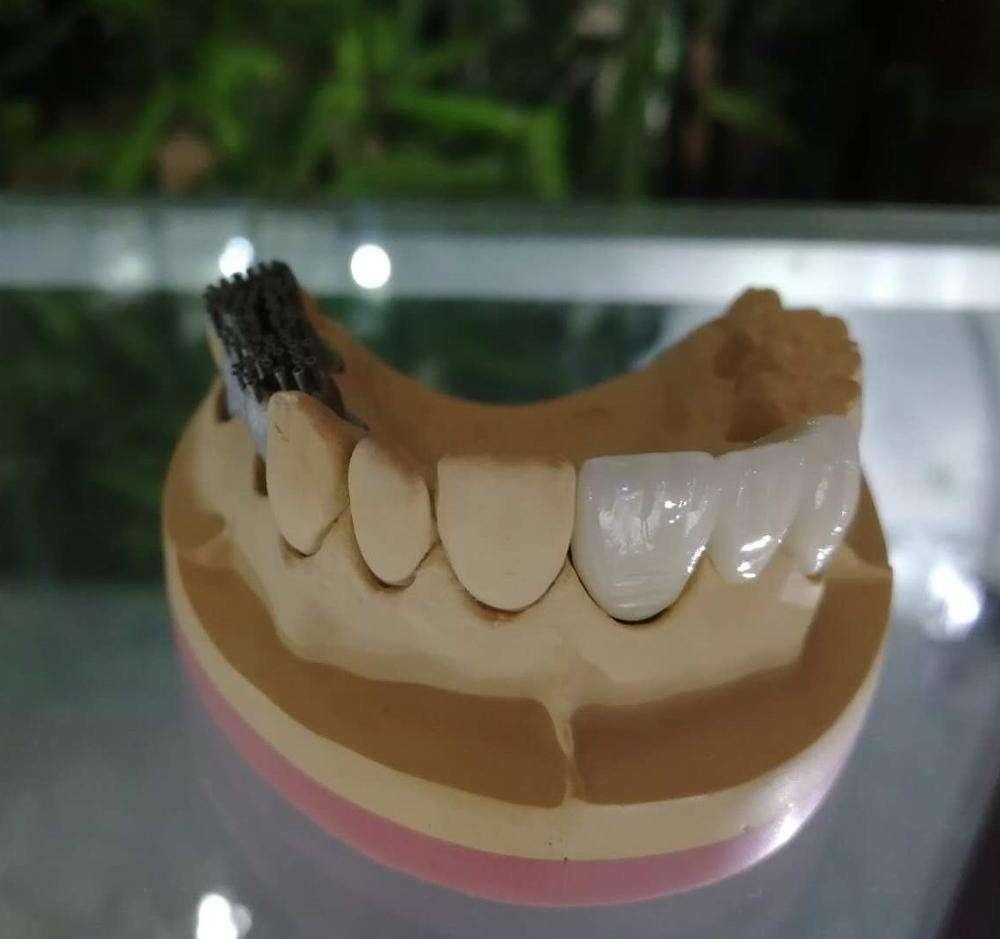 Коронки из металлокерамики на передние зубы: особенности, фото до и после протезирования