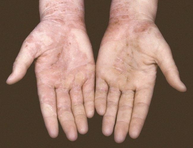 Экзема на руках лечение