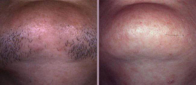 Побочные эффекты лазерной эпиляции, противопоказания и последствия популярной процедуры удаления волос