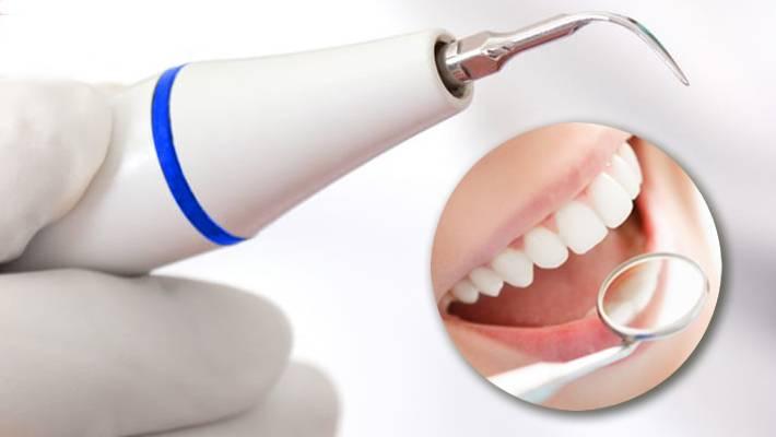 Лечение зубов лазером: виды, показания, противопоказания