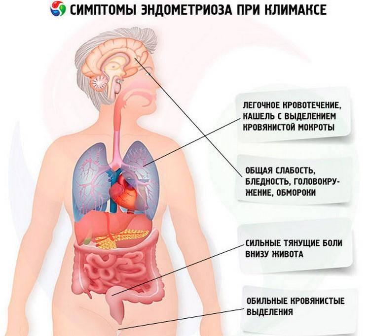 Особенности развития миомы матки в сочетании с эндометриозом: признаки, лечение и прогноз
