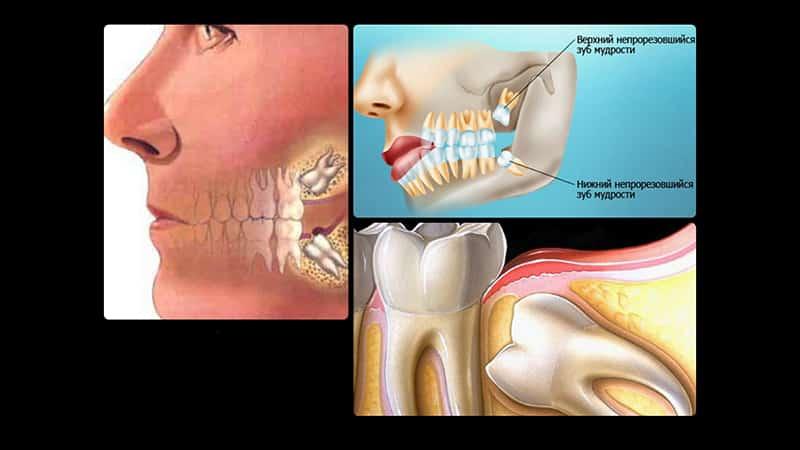 Почему опухает десна или щека после удаления зуба